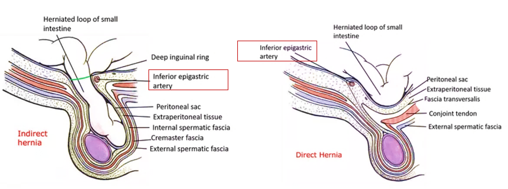 Inguinal Hernias - direct and indirect inguinal hernias, differences ...