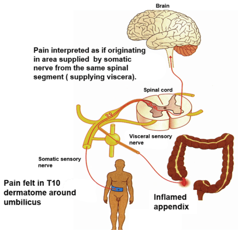 Referred Pain -