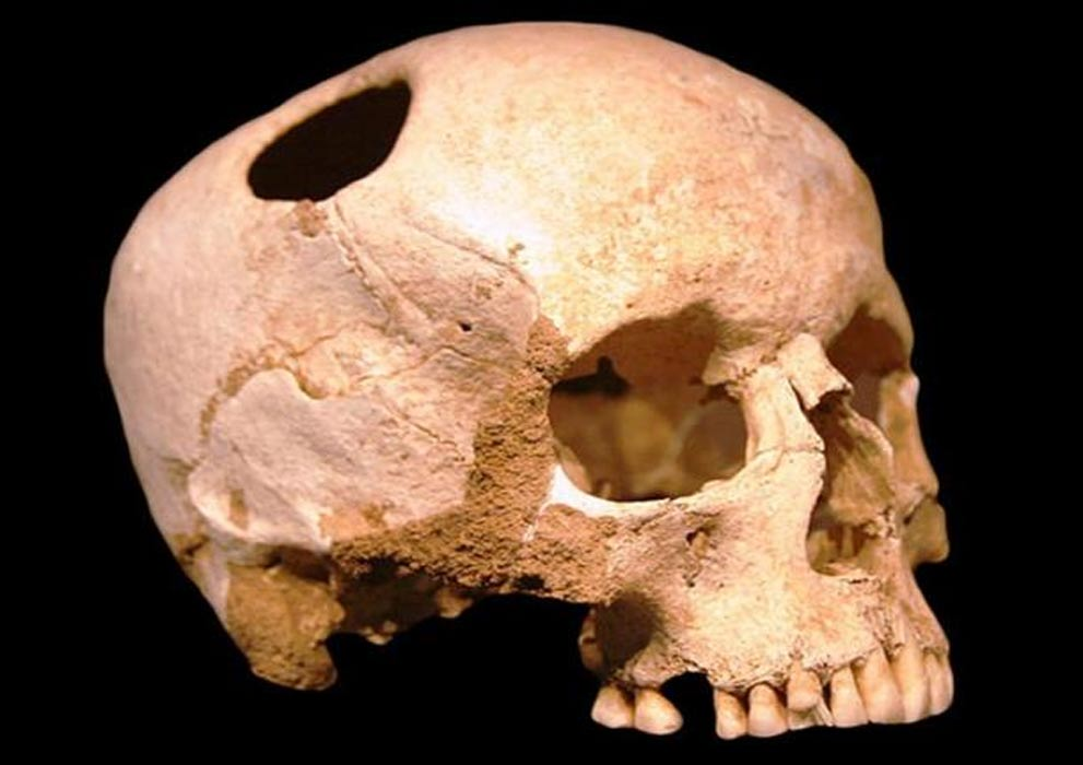 Girl skull, trepanated with flint tools; neolithic (3500 BC) ; patient survived. Natural History Museum, Lausanne ( CC BY SA 2.0 )