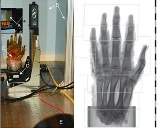 Izquierda: Fotografía de la toma de imágenes por contraste tal y como se veía desde el detector: fuente de rayos X con ventana de salida (A), blindaje anti-radiación alrededor de la fuente y el conjunto del experimento (B), muestra colocada en un cilindro de plástico aislado con espuma plástica (C), base para la rotación de la muestra (D), y cámara de rayos X (E). Derecha: Regiones para realizar las diferentes tomografías. Para la toma de imágenes de la mano se realizaron un total de nueve escáneres tomográficos. Aquí se muestra el campo de visión de cada uno de los escáneres. Antes de la reconstrucción tomográfica, las regiones izquierdas del cuarto y el quinto escáner empezando por abajo estaban unidas a sus respectivas regiones derechas. La escala está en centímetros. Crédito: Sociedad Radiológica de Norteamérica