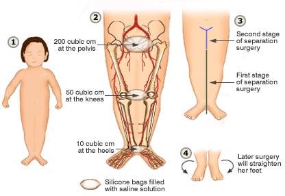 Un diagramma che mostra un bambino con Sirenomelia