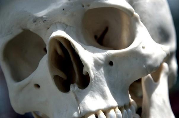 Un cráneo humano.  Imagen de representación solamente.