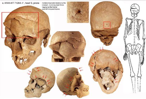 Uno de los cráneos destrozados del lago Nataruk, Kenia.