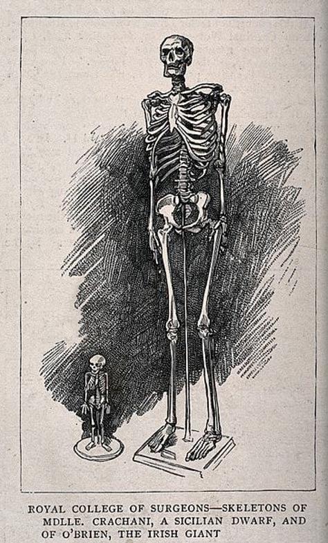 Esqueletos de un gigante macho y una enana, que aparecen en el Royal College of Surgeons.