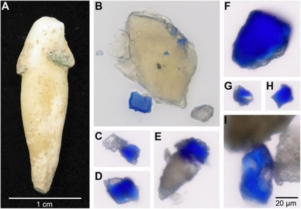 Blue particles observed embedded within archaeological dental calculus. (A) Archaeological tooth from individual B78 showing attached dental calculus deposits before sampling. Images (B) to (I) are shown to the same scale, as indicated in (I). Credit: C. Warinner (A); M. Tromp and A. Radini (B to I). (CC BY NC 4.0)