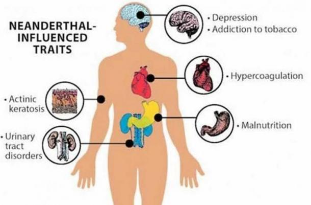 Neanderthal genes have been connected to many health issues in modern humans.