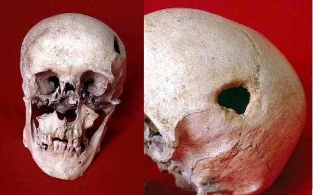 Un homme médiéval a peut-être eu la tête percée dans un exorcisme