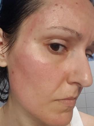lato destro del viso