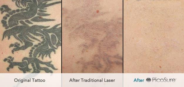PicoSure® Tattoo Removal UK | Andrea Catton Laser Clinic ...