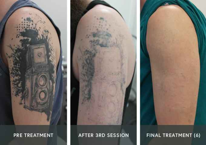 PicoSure® Tattoo Removal UK | Andrea Catton Laser Clinic ...