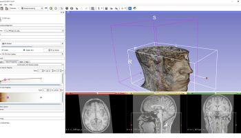 Visualizing MRI & CT Scans in Mixed Reality / VR / AR, Part