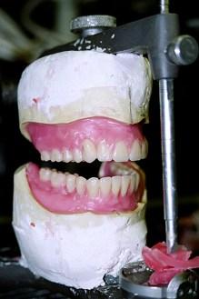 Улыбка в 28 зубов :)