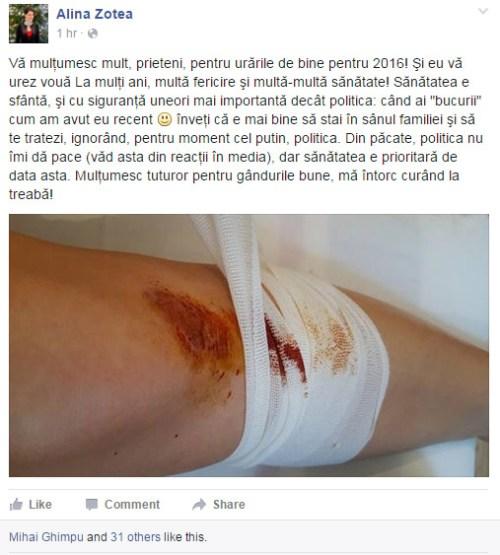 alina-zotea-chiuleste-parlament-picior-moldova