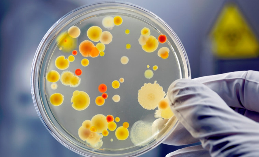 Bacteria care se raspandeste in spitale: niciun antibiotic nu are efect