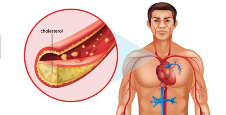 Care sint valorile normale la prostata