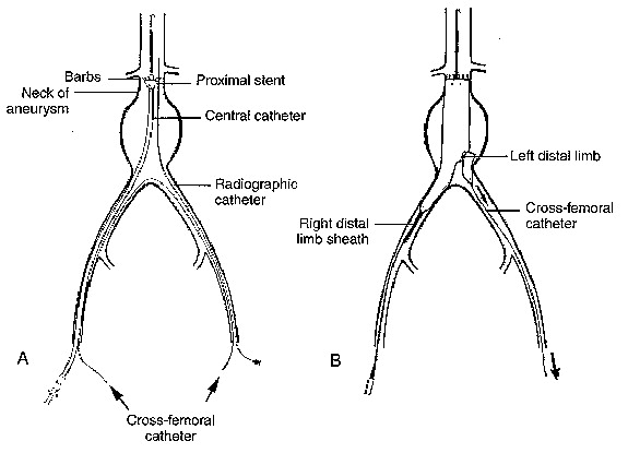 ANESTHETIC CONSIDERATIONS FOR MINIMALLY INVASIVE