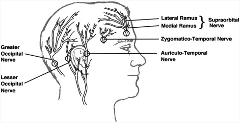 Perioperative Pain Management in the Neurosurgical Patient