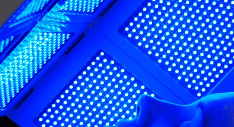 Picture of woman layiong under blue LED light therapy