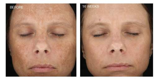 Improved complexion after treatment