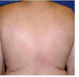 After laser hair removal from the back