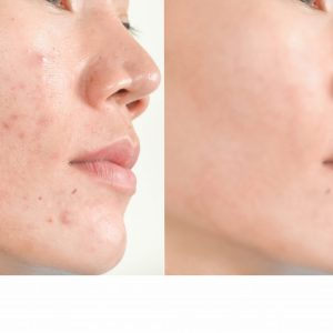 Acne Treatment Products