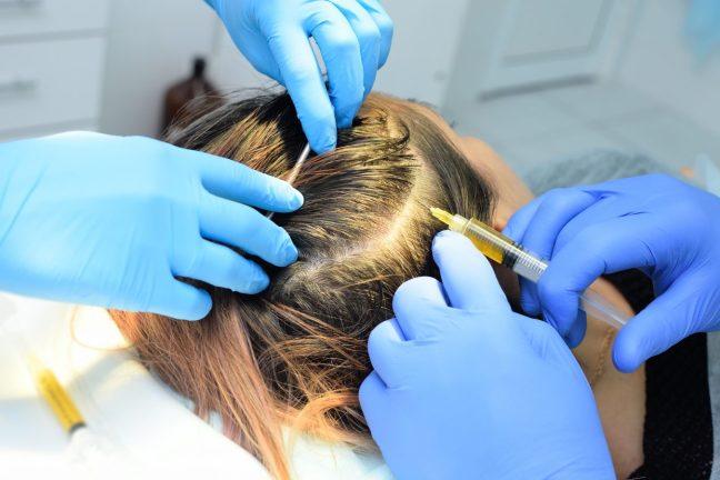 PRP injection hair restoration