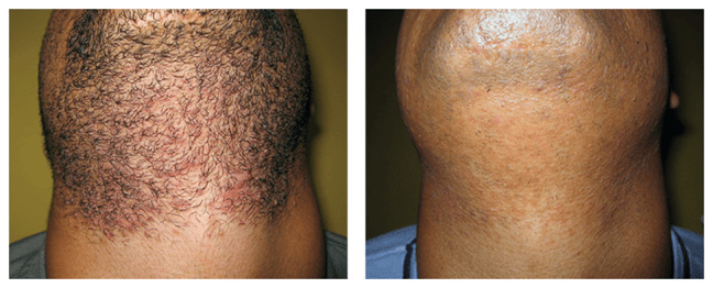Laser hair removal before/after
