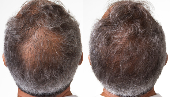 Before/After Hair Restoration treatment