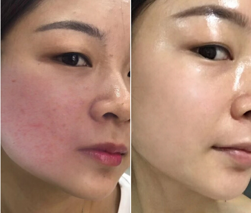 Before/After IPL photofacial