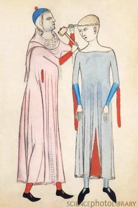 Ilustración de una trepanación durante el medioevo.