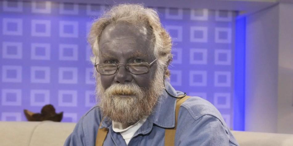 Paul el azul durante una entrevista televisiva, uno de los casos más emblemáticos de gente azul.