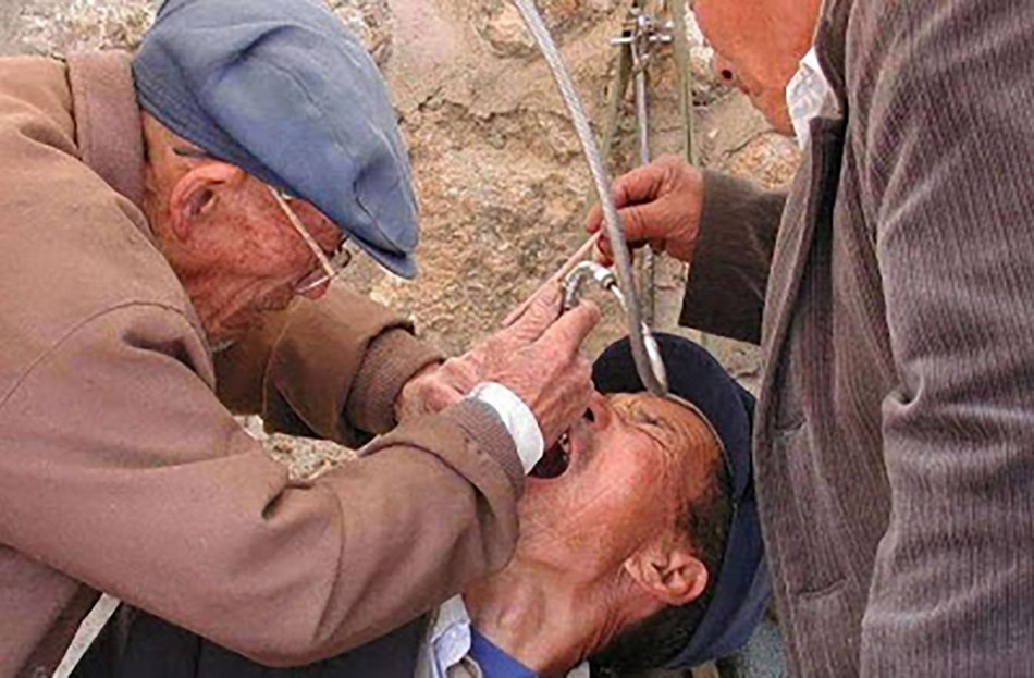 Dentistas en China.