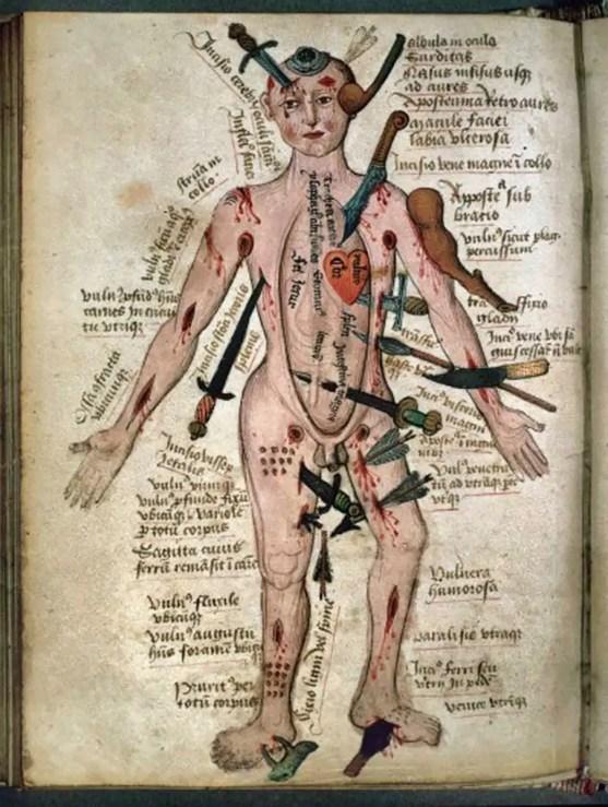 Manual del hombre herido del siglo XV.