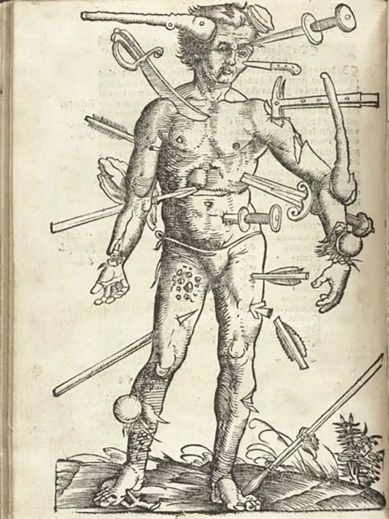Der verwundete Mann.
