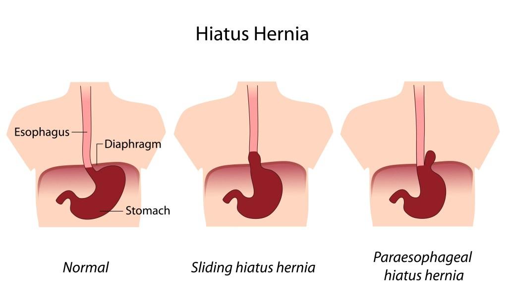 paraesophageal hernia, laparoscopic hiatal hernia repair