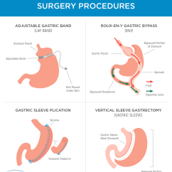 Gastric Bypass Diagram Annelida Segmented Worm Weight Loss Surgery In Mexico Tijuana Bariatric