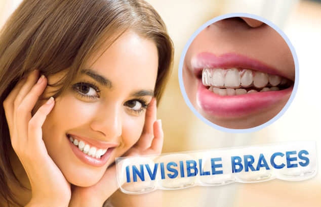 Ways Invisalign braces can help your crooked teeth | Angel ...
