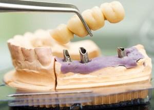 dentist 42