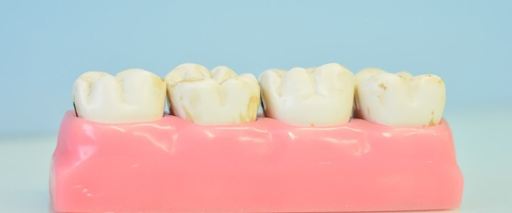 Factors To Consider When Establishing The Best Dentist