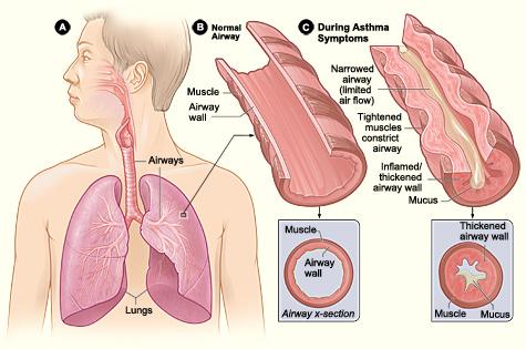 Fisiopatologia da asma bronquica