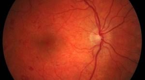 Fundo do olho