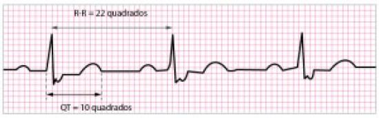 Traçados-ECG