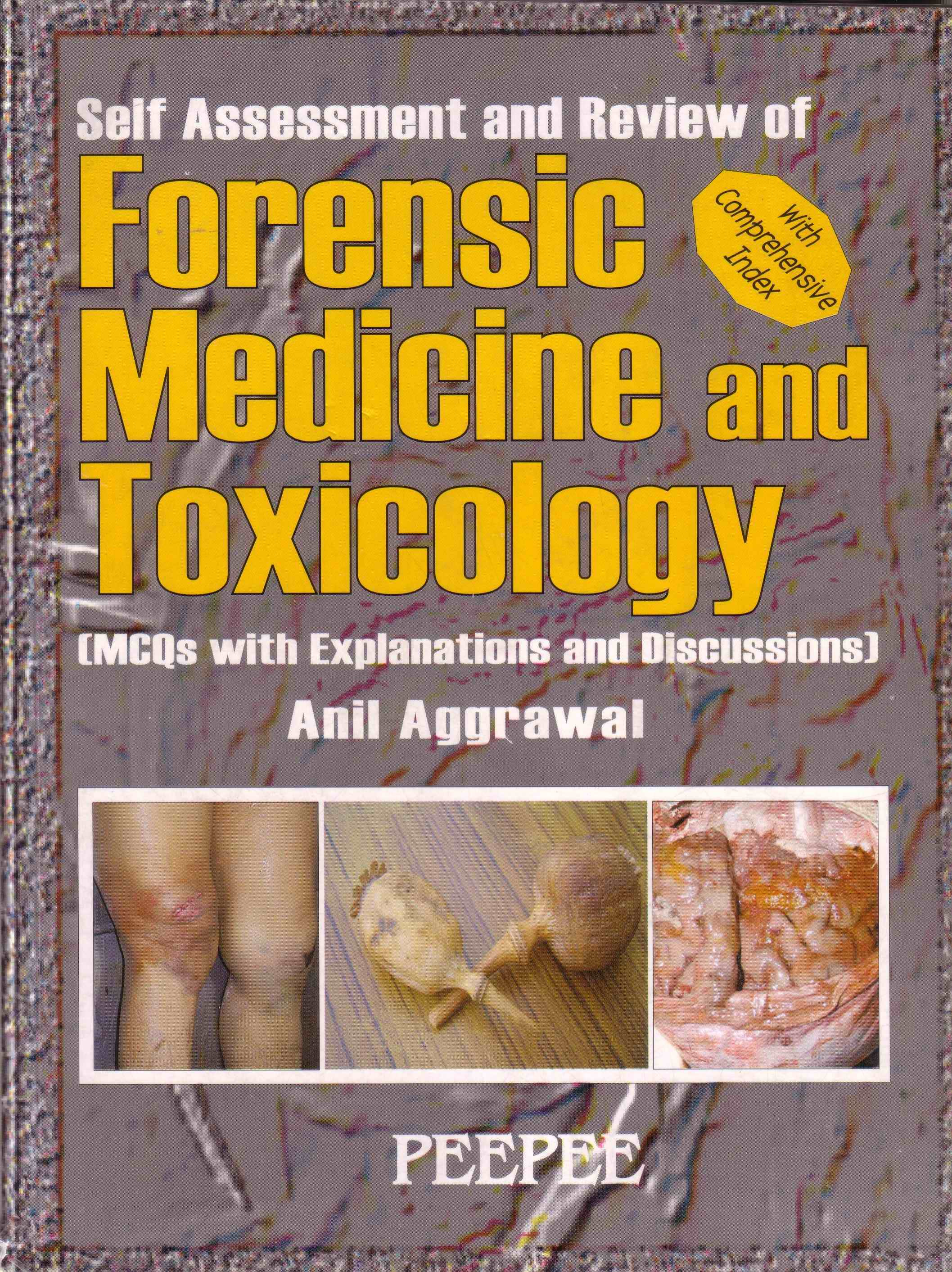 Anil Aggrawals Internet Journal of Forensic Medicine Vol