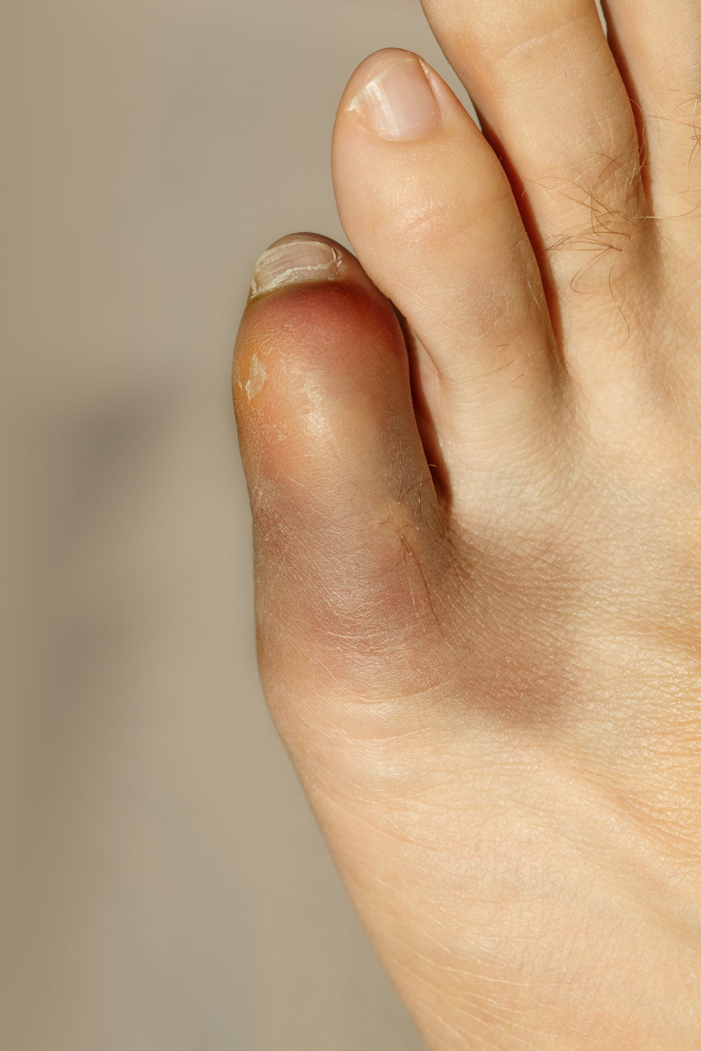 How to help heal a broken big toe quickly do