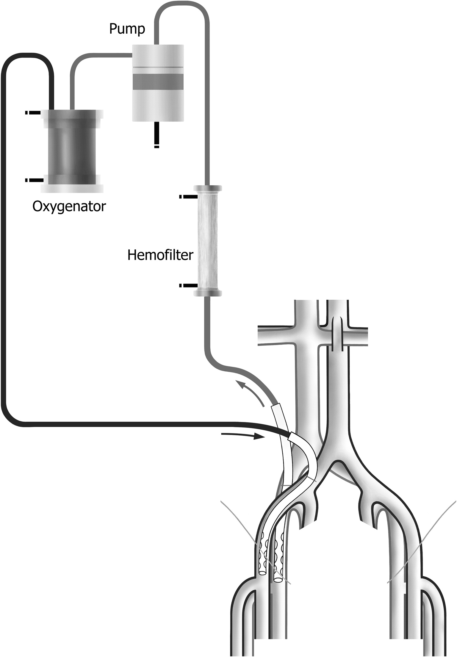 Hypothermic Initially Oxygen Free Controlled Limb