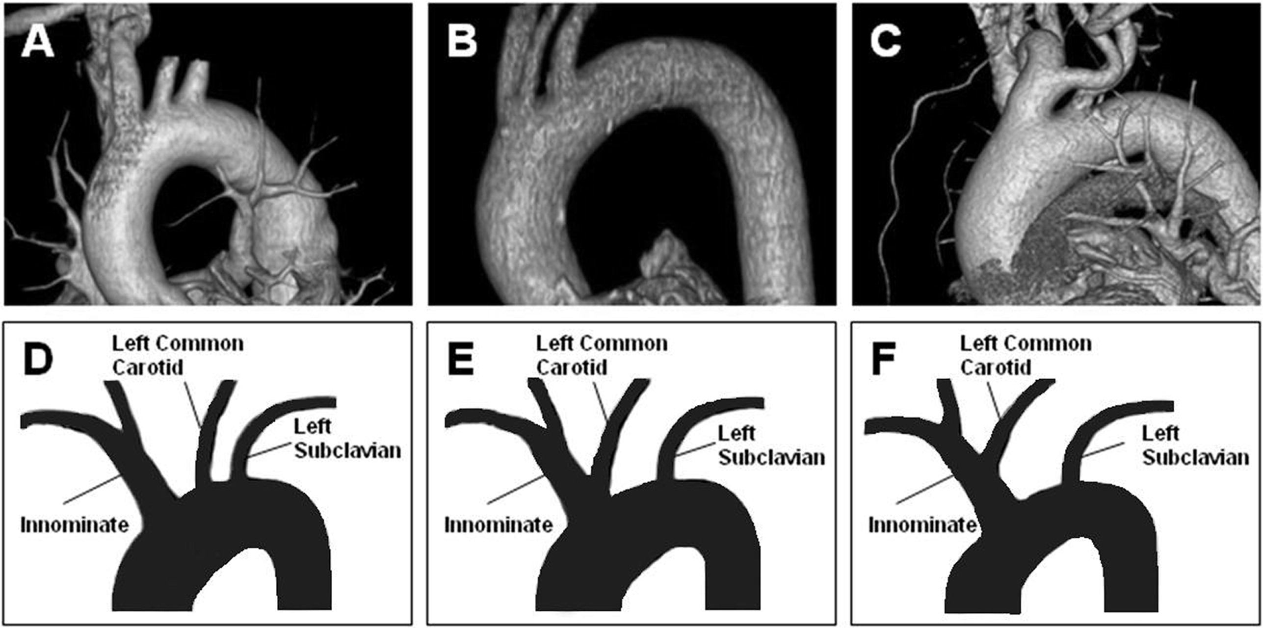 Prevalence of Bovine Aortic Arch Configuration in Adult Patients with and without Thoracic Aortic Pathology - Annals of Vascular Surgery