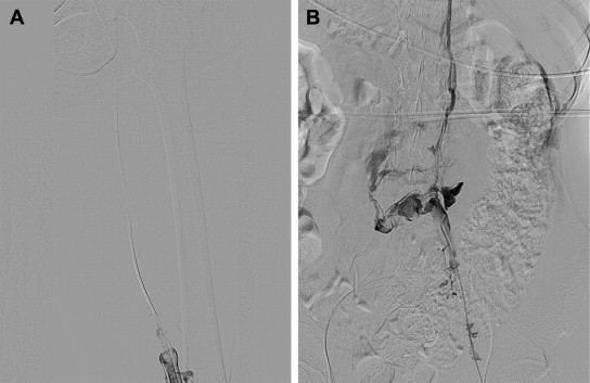 Congenital Absence of Inferior Vena Cava in a Young