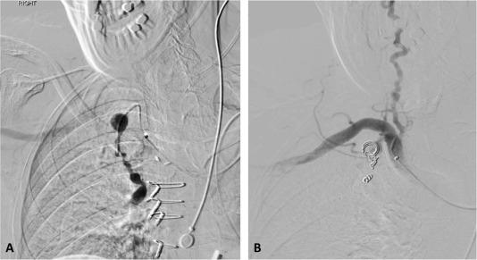Endovascular Repair of Internal Mammary Artery Aneurysms
