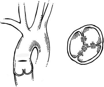 Management of Aortic Valve Insufficiency in Patients