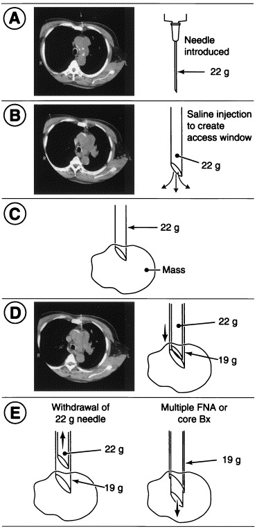 Salinoma window technique for mediastinal lymph node